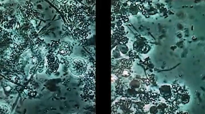 ビジュアル位相差顕微鏡で見るお口の中