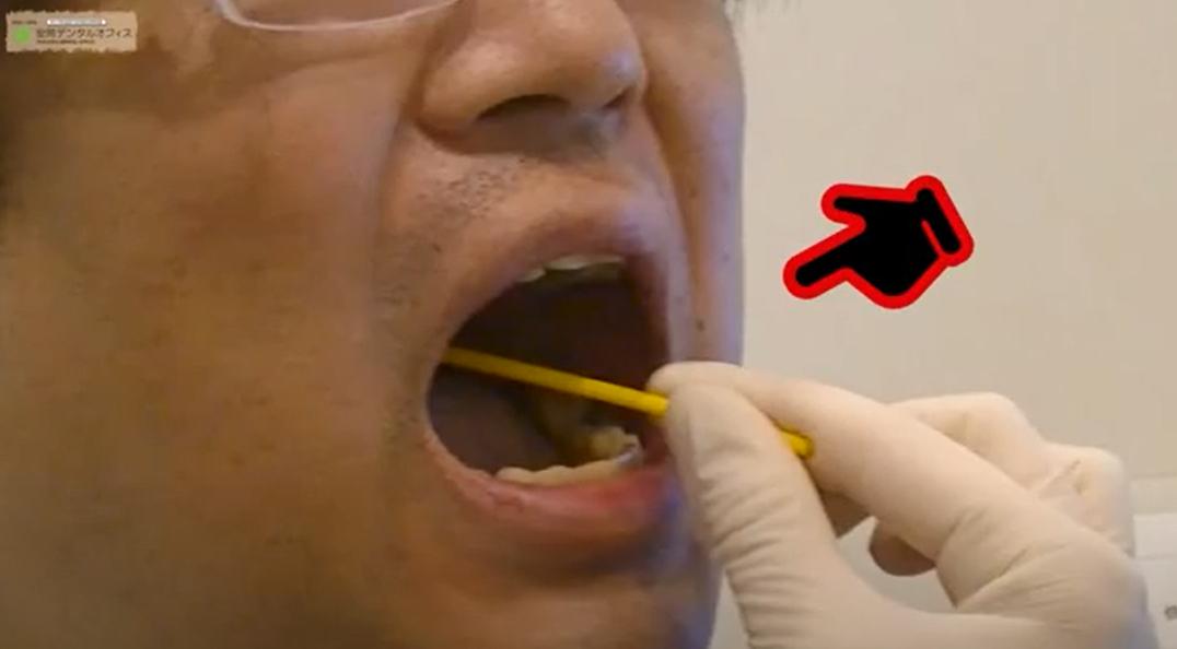 お口の中からミュータンス連鎖球菌を採取