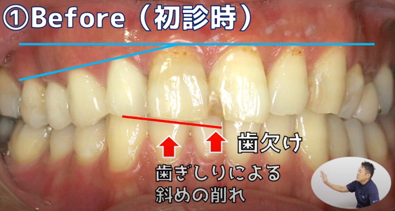 (治療前)審美修復の症例
