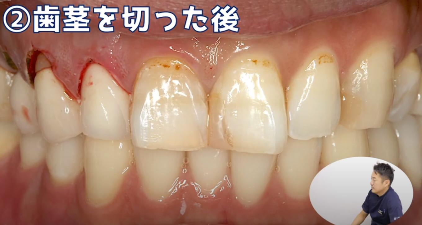 (歯肉切除後)審美修復の症例