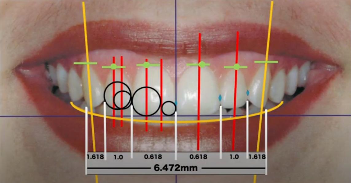 歯のゴールデンプロポーション(黄金比)