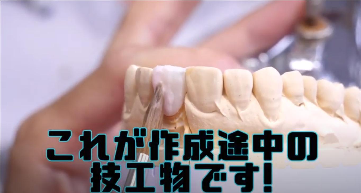 補綴物(歯の被せ物)の作成②