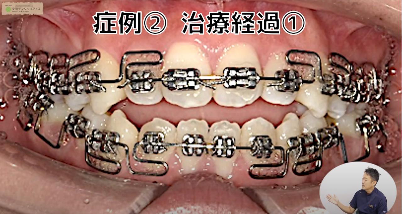 (治療経過①)3Dワイヤー矯正治療の症例