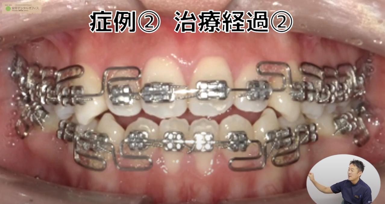 (治療経過②)3Dワイヤー矯正治療の症例