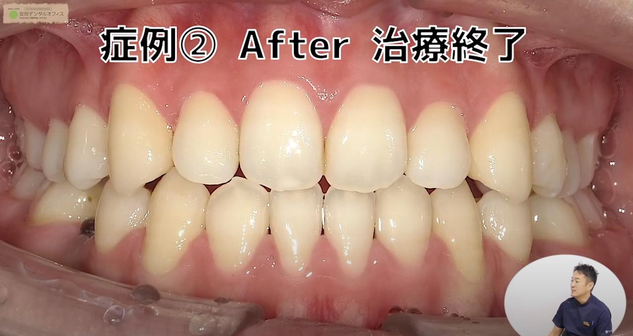 (治療後)3Dワイヤー矯正治療の症例