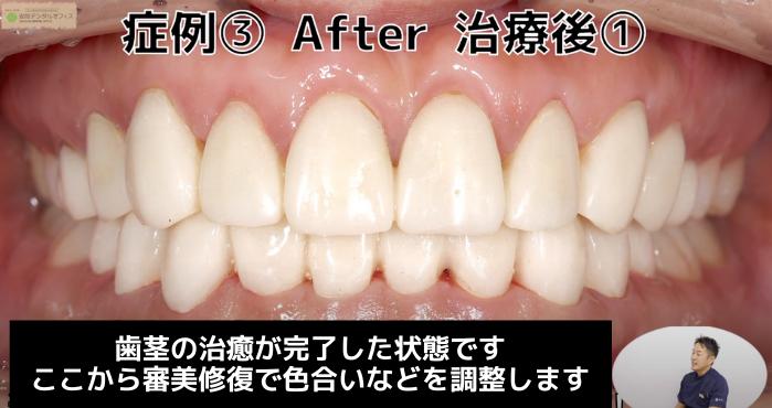 ガミースマイル治療の症例③(治療後仮歯)