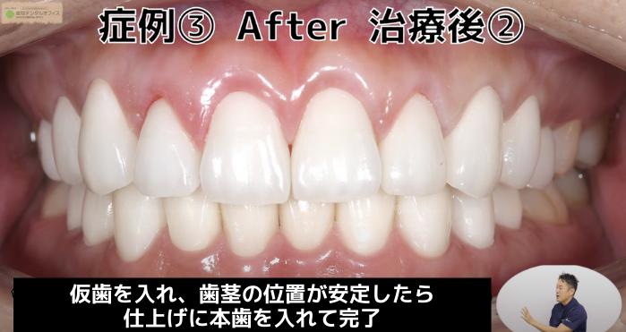 ガミースマイル治療の症例③(治療後本歯)