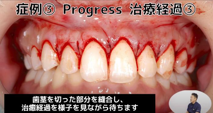 ガミースマイル治療の症例③(治療経過3)